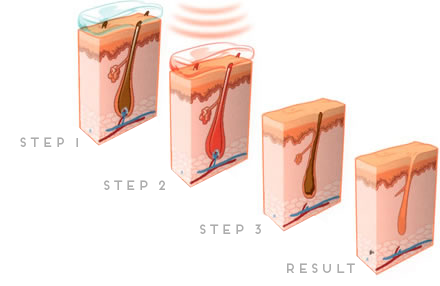 laser-hair-removal-diagram