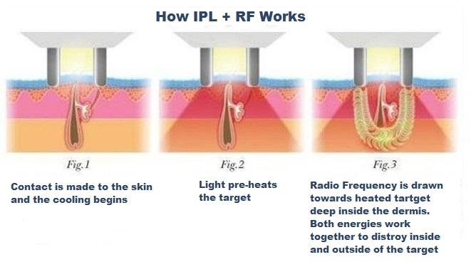 how-RF-Plus-ipl-works
