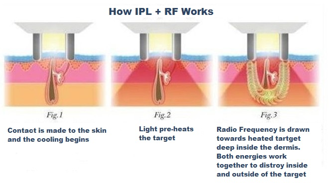 how-RF-Plus-ipl-works